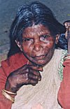 She suffers from leprosy, hence requires public help.