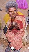 A Patient of Leprosy Begging outside a Church